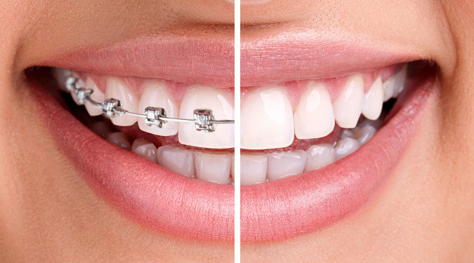 Invisalign vs Traditional Braces Image